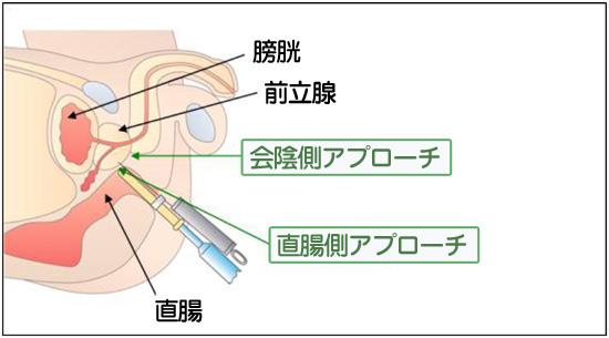 確定診断模式図
